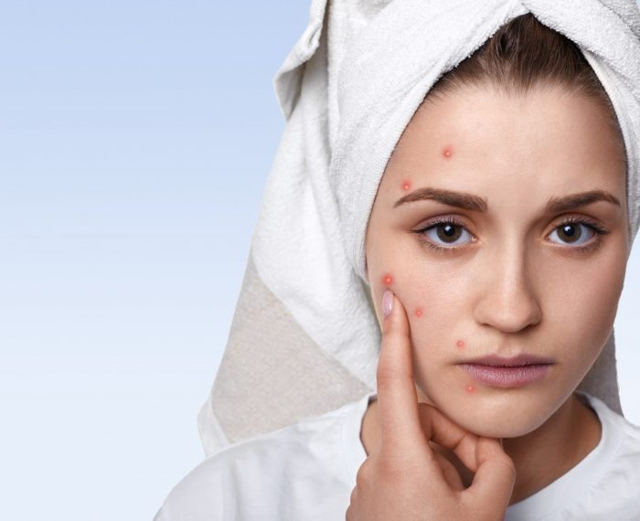 How to Treat Acne and Pimples by Ayurveda